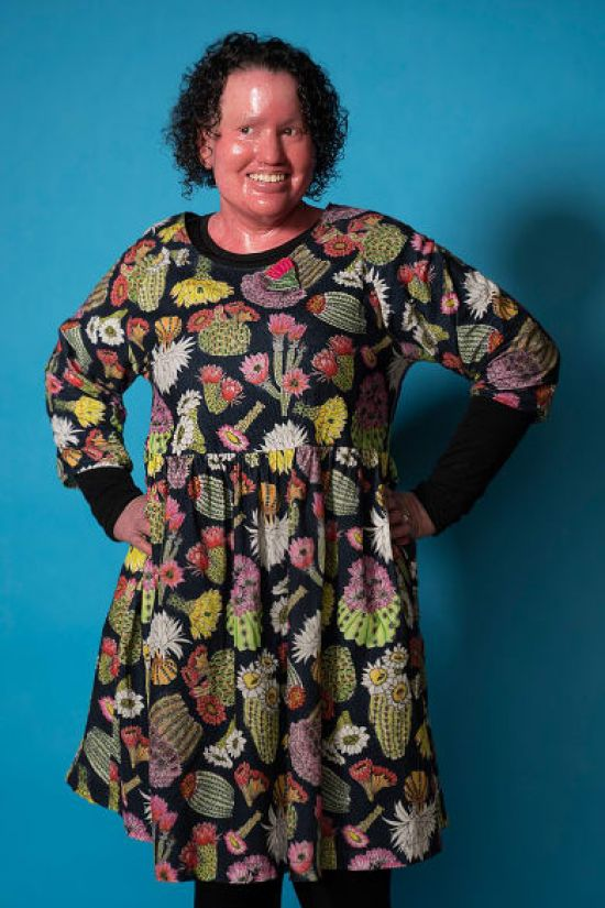 Access to Fashion - author Carly Findlay organises inclusive fashion celebration
